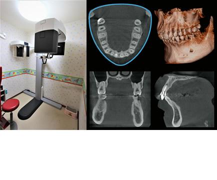 歯科CTセファロ